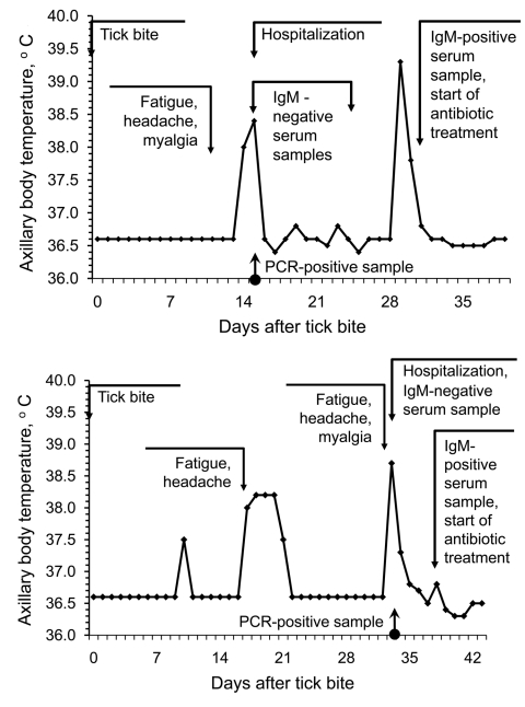 Examples of relapsing fever episodes in 2 patients with Borrelia miyamotoi infection.
